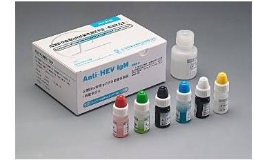 吉林市疾病预防控制中心艾滋病病毒检测试剂采购项目二次招标