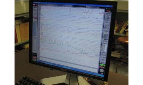 阳江市人民医院新生儿脑电监测系统采购项目公开招标